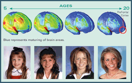 teenage brain vs adult brain